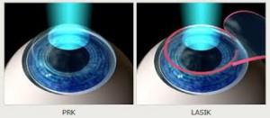 le due metodiche laser