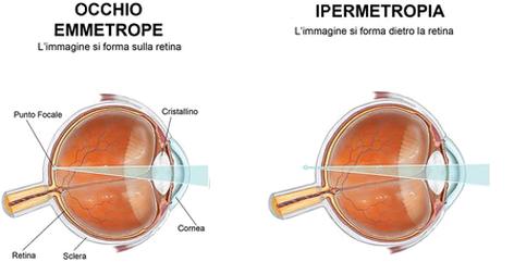 Laser diversi e risultati diversi dettagli da conoscere - Cosa vuoi gemelli diversi ...